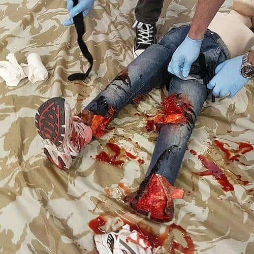 Catastrophic bleed management course - typical scenario